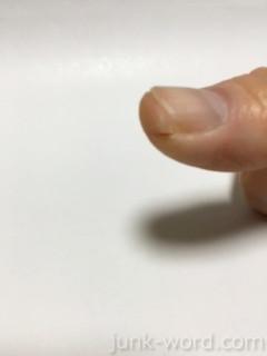 親指爪横のぱっくり割れ